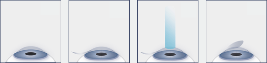 LASIK Eye Surgery Procedure Diagram
