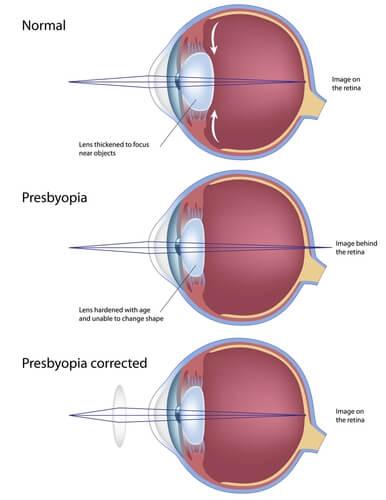 Presbyopia Diagram