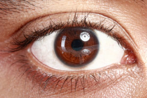 Close up of an eye with Diabetic Retinopathy