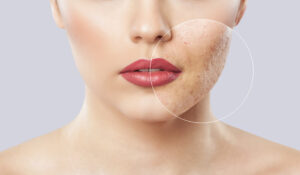 Example of Acne Scar with Microneedling